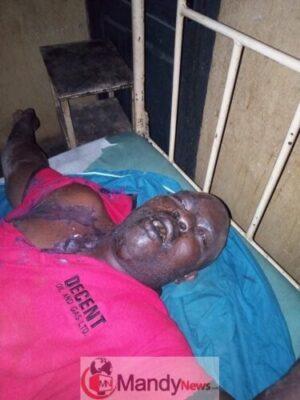 Man Commits Suicide After Attacking Wife With Acid In Anambra (Graphic Photos)