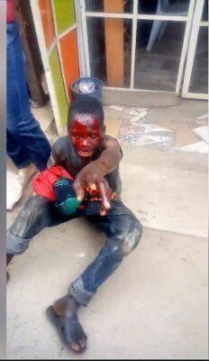 Boy Caught Stealing Female Underwear. Left Bloodied (Photos)