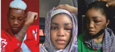lil-frosh-denies-assaulting-girlfriend-again-says-swollen-face-was-as-a-result-of-an-allergy